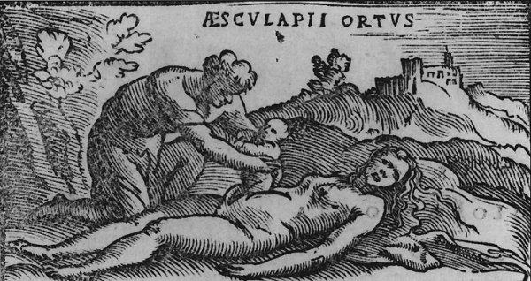 Sezaryen doğumun ilginç tarihçesi #5